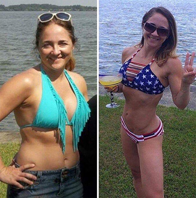 Atlanta Weight Loss Before and After